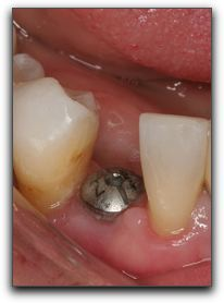 Plano Tooth Implants