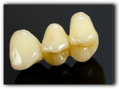 Apex, NC cosmetic dental and tooth implants