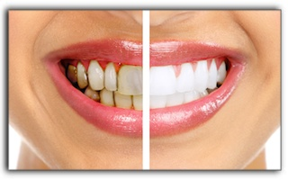 Teeth Whitening For 3 Types of Tooth Stains in Los Angeles