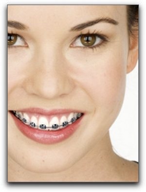 Invisalign Treatment For Los Angeles Patients
