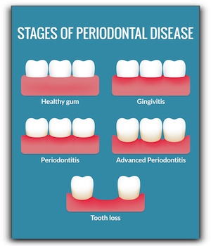 Gum Disease Treatment at Las Vegas Dentist