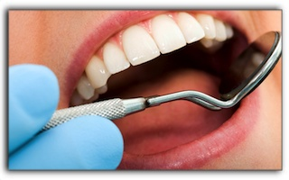 Rockford MI General Dentistry - Cavity Basics