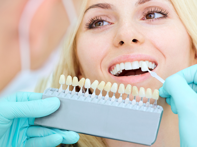 same day dental crowns Shelby Township