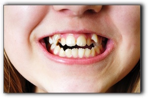 fast braces Palm Harbor