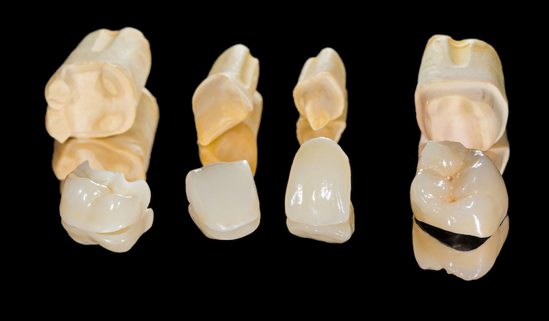 Dental Crowns in Denver