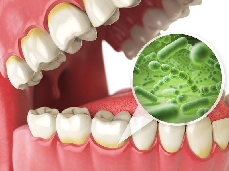 tooth decay prevention San Diego