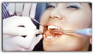 cosmetic dentistry Myers Park