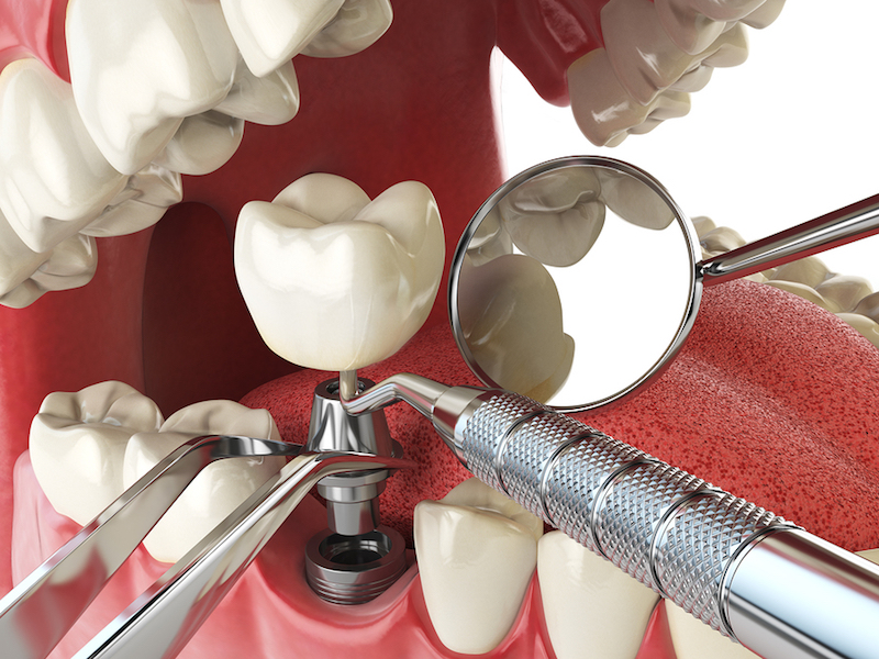 same day extraction and tooth implant placement Friendswood