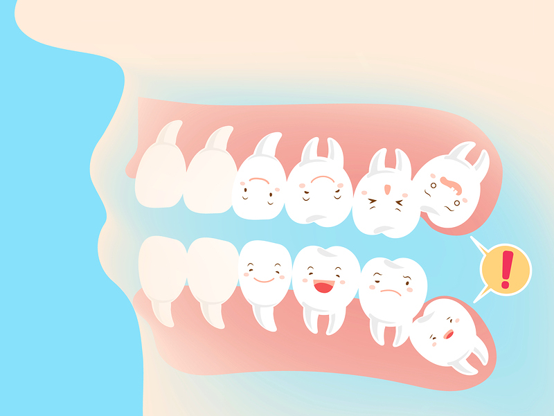 wisdom teeth Lewisville
