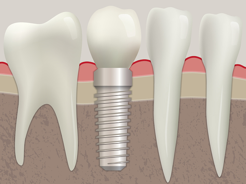 dental implants Tooth Extraction in Denver