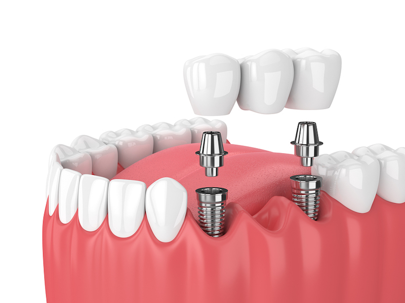 dental implant abutment Carrollton