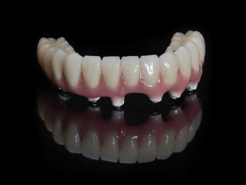 implant dentures Arlington