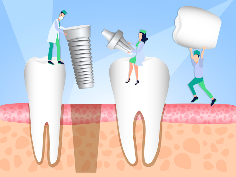 why does a tooth implant take several months? Fresno