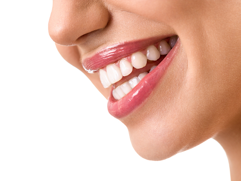 smile makeovers Cary Dental Implants in cary