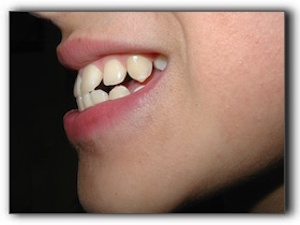 malocclusion examination Friendswood