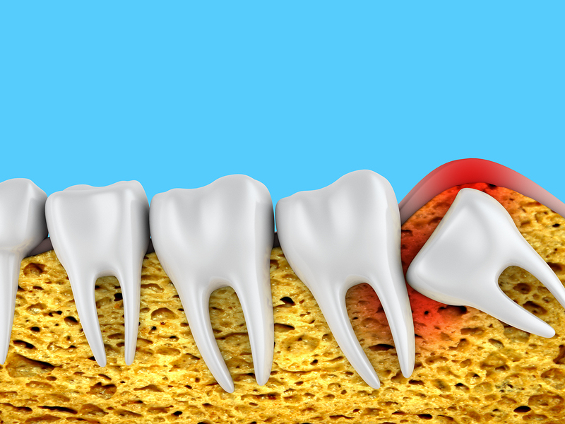 wisdom teeth removal Burlington