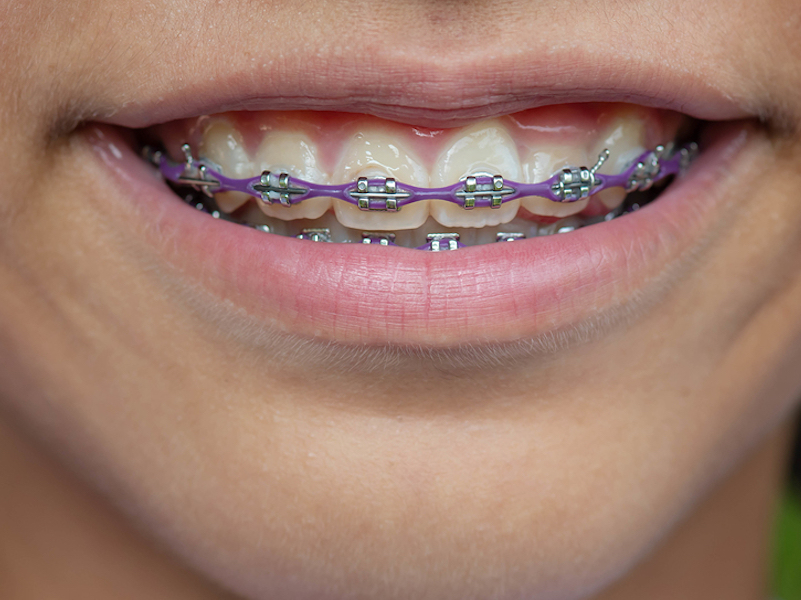 top orthodontist Kelowna