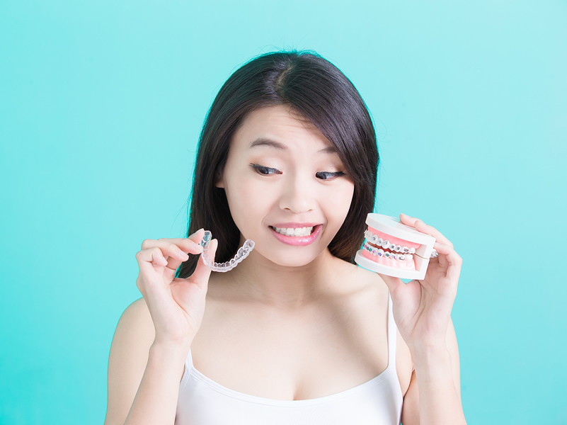 How Do Conventional Braces Compare to Invisalign? Shelby Township