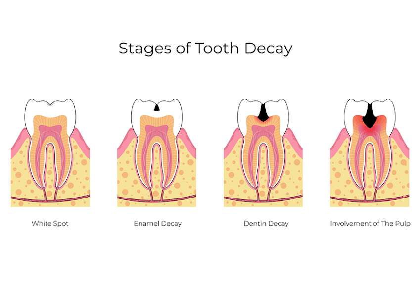 stages of a cavity Campbell