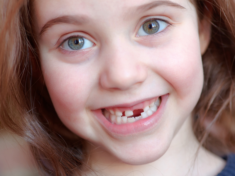baby teeth fall out early? Upper Arlington