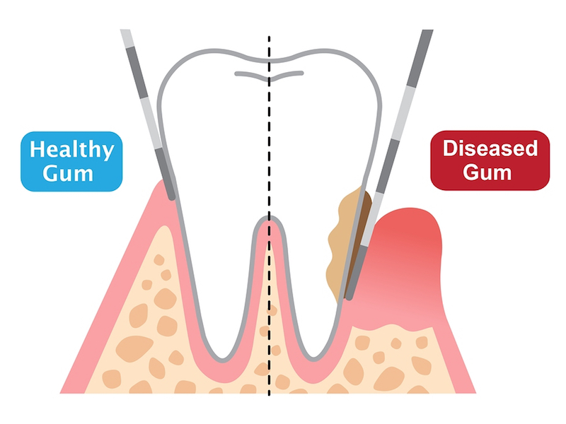 gum disease treatment Marble Falls