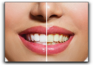 professional teeth whitening Alexandria