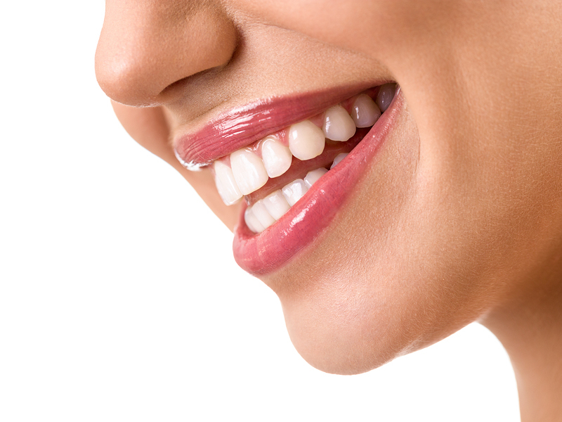 San Francisco low cost teeth whitening