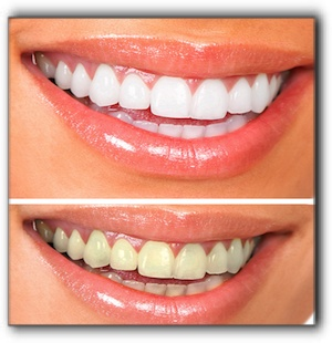 Lewisville teeth whitening
