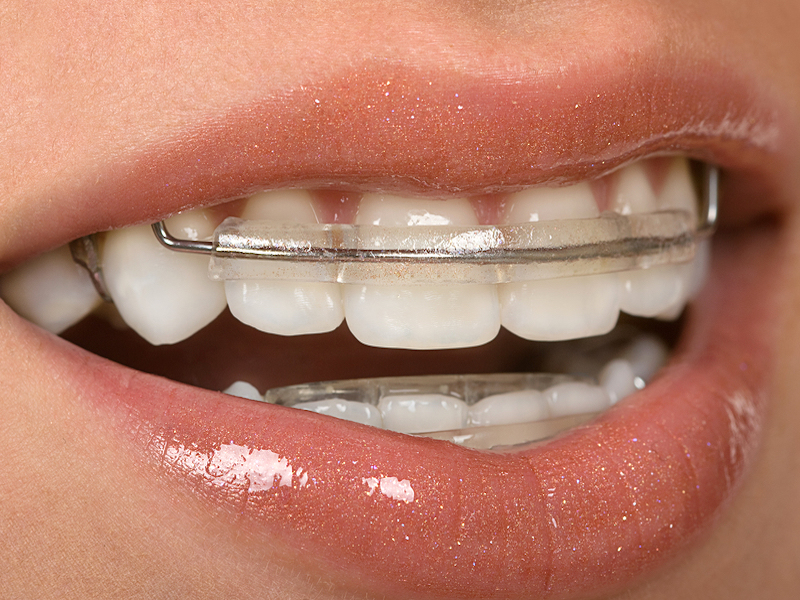 Spring Retainers Can Correct Alignment Without Braces