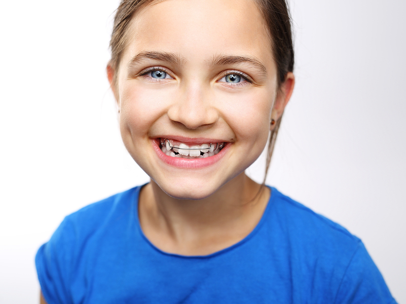 how to fix overlapping teeth Burlingame