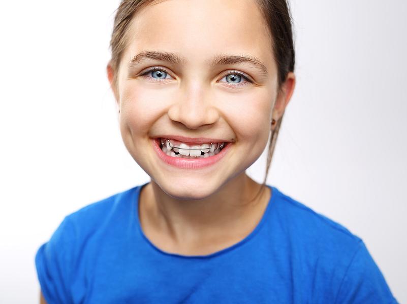 how to fix overlapping teeth Burlington