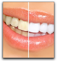 Lighten Your Smile With Pearland Professional Teeth Whitening
