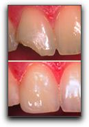 Dental Crowns at Create A Smile, PC - Dr. Ken Moore in Bloomington