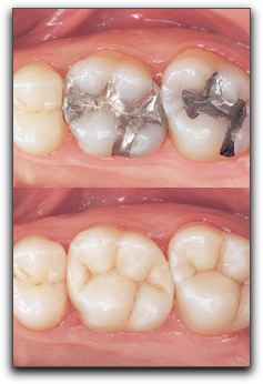 Tooth-Colored Fillings in San Diego
