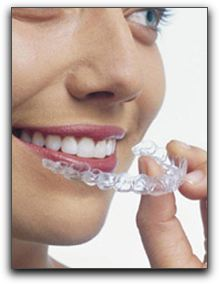 Clear Braces - Nearly Invisible Teeth Straightening for Decatur Adults