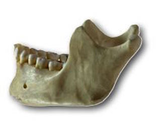 Cary Jaw Bone Deterioration