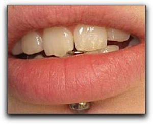 Dental Health Issues Associated With Oral Piercings in Rockford MI