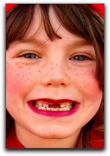 Gordon West DDS, Cosmetic & General Dentistry in Lafayette Cares For Teeth