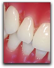Periodontal Disease in Texas