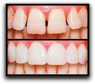 Decatur Prepless Veneers