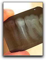 VA Dentist Calms Root Canal Fears