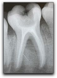 Root Canals in Arlington