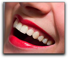 Tooth Whitening and Your Comstock Park Dentist