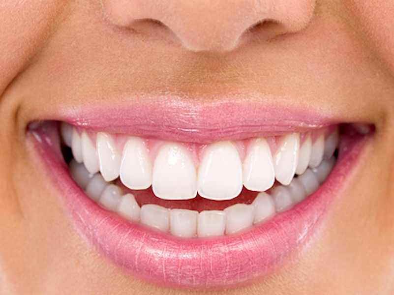 Professional Teeth Whitening at Marcos Ortega DDS