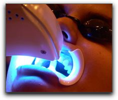Tooth Whitening Dentistry In Katy