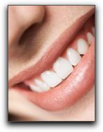 Whiter Teeth for Palm Harbor