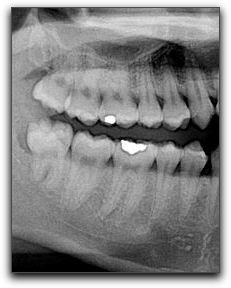 Wisdom Teeth And Your Friendswood Dentist