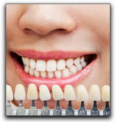 Almeida & Bell Aesthetic Dental Center Can Make Your Whites Whiter