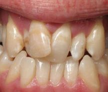 Indianapolis Holistic Dentist And Malocclusion