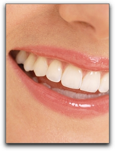 Moore low cost teeth whitening